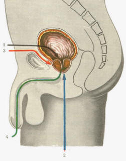 лечение простатита монурал